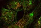 Scoperto il meccanismo che scatena l'Alzheimer