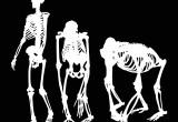 Come l'agricoltura ha portato alla fragilità ossea