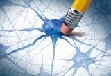 Alzheimer: in Australia si sperimenta farmaco che ferma la progressione della malattia