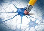 Alzheimer, funzionano gli ultrasuoni focalizzati a bassa intensità