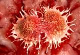 Tumori: 1 su 4 è raro e la sopravvivenza è inferiore