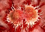 Tumore al cervello: scoperto meccanismo che innesca la proliferazione