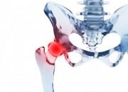 Cuore: artrosi ne può aumentare i rischi