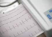 Scompenso cardiaco: resincronizzazione pericolosa per pazienti con QRS breve