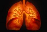 La 'firma' del tumore al polmone in un test del sangue