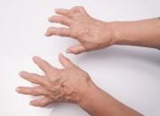 Artrite reumatoide: rischia meno chi ha smesso di fumare da anni