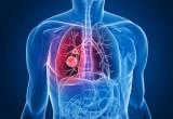 Tumore del polmone: dati confermano aumento sopravvivenza con immunoterapico atezolizumab