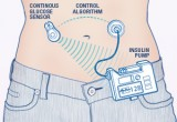 Pancreas artificiale: efficace anche nei pazienti con diabete tipo 2