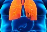 La sindrome metabolica può predire patologie polmonari