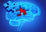 Alzheimer: evitare errori nella diagnosi con una risonanza magnetica