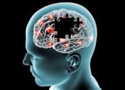 Parkinson: ancora un'evidenza per la stimolazione cerebrale profonda