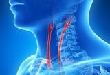 Arteriopatia periferica: il test dell'acqua fredda predice il rischio di evento cardiovascolare