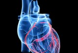 Coronarie: prima di un intevento percutaneo, meglio non sospendere acido acetilsalicilico