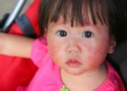 Dermatite atopica: in bambini e ragazzi, i probiotici riducono gravità e uso di steroidi