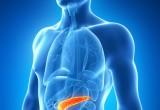 Tumori: identificati 4 tipi di cancro al pancreas