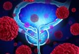 Tumore della prostata: sorveglianza attiva per 1 paziente su 3
