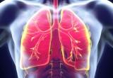 Carcinoma polmonare: necessari nuovi criteri per lo screening