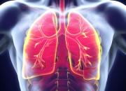 Polmoni: il follow up degli screening può comportare complicanze