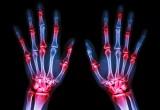 Artrite reumatoide: dati rassicuranti su rischio cancro nuovi farmaci biologici