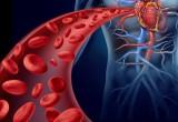 La salute del cervello è scritta sulle pareti delle arterie
