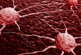 Scoperto il gene del tumore a cellule giganti