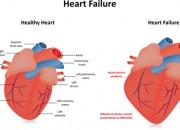 Insufficienza cardiaca: un campione di sangue la svelerà