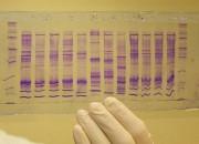 Tumori: arriva 'biopsia liquida' dalla saliva. Risultati in 10 minuti