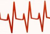 Infarto miocardio: necessari protocolli ad hoc per quelli con sopraslivellamento del tratto ST