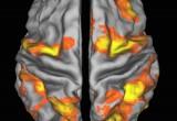 Scoperto come il cervello evita le distrazioni