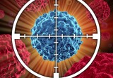 Tumori: l'alternativa alla biopsia è un chip indossabile