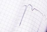 Sindrome di Brugada, studio italiano: morte improvvisa legata ad anomalia rilevabile con ECG