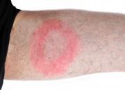Malattia di Lyme: lunga terapia con antibiotici inefficace contro sintomi persistenti