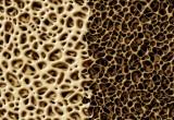 Osteoporosi: un problema anche per lui. In arrivo le nuove linee guida