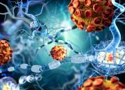 Sclerosi multipla può aumentare rischio di sviluppare un tumore