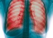 Fibrosi Polmonare Idiopatica: un appello alle istituzioni per superare le disparità di trattamento regionali