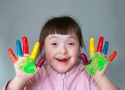 Sindrome di Down: dalla genetica nuovi farmaci specifici