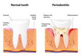 Stress e depressione collegate a parodontite