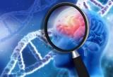 Alzheimer: con analisi liquido cerebrospinale, diagnosi più sicure