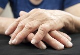 Artrite reumatoide: triplice terapia efficace e poco costosa