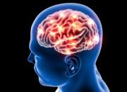 Ictus più lieve in chi fa una moderata attività fisica