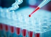Cancro vescicale: cellule maligne nel sangue orientano il trattamento