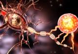 Sclerosi multipla: la mancanza di sonno aumenta il rischio di recidive