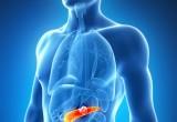 Cancro al pancreas: efficace regime a 4 farmaci per lo stadio avanzato