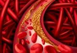 Terapia anti-tumore funziona anche contro aterosclerosi