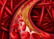 Aterosclerosi: l'attività fisica riduce la mortalità