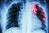 Tubercolosi: curcumina protegge cellule sistema immunitario da infezione