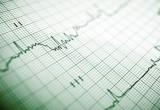 Arresto cardiaco: microRNA rivela esito e sopravvivenza