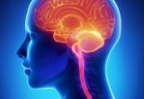 Sindrome di Tourette: efficace, in alcuni casi, la stimolazione cerebrale profonda