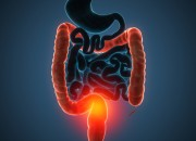 Colite ulcerosa: l'infiammazione attiva persistente è legata  al rischio di neoplasie
