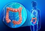 Cancro colon retto: le nuove linee guida USA per biomarker molecolari